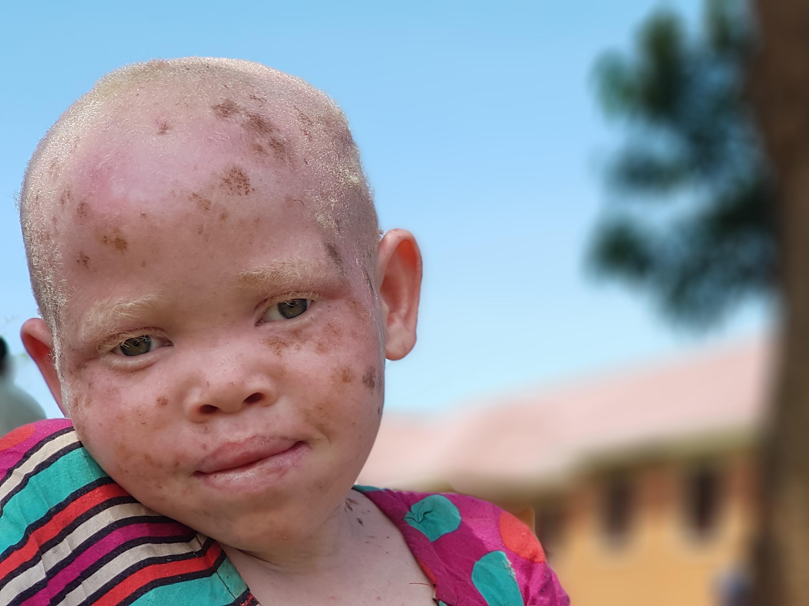Albino Project